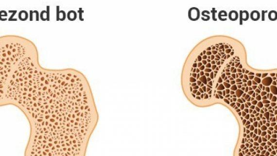 Artrose of Osteoporose?